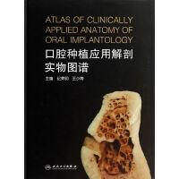 口腔种植应用解剖实物图谱