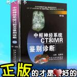 中枢神经系统CT和MR鉴别诊断【*新第三版】陕西科技 中枢神经系统CT和MR鉴别诊断(第2版) 鱼博浪 不以定价销售已