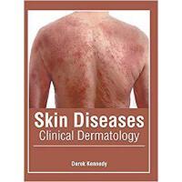【预订】Skin Diseases: Clinical Dermatology 9781632426208