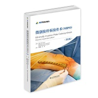 微创接骨板接骨术(第2版)