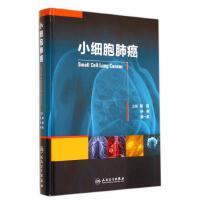 小细胞肺癌(精)