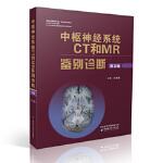 [二手旧书9成新],中枢神经系统CT和MR鉴别诊断,鱼博浪,9787536953178,陕西科学技术出版社