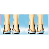 儿童硅胶O型腿矫正鞋垫X型腿罗圈腿型纠正矫正鞋垫后跟垫 其它尺码