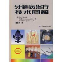 牙髓病治疗技术图解(精)/口腔医学丛书 (美)比尔,(美)鲍曼,(美)基尔巴萨,潘亚萍 9787538149982